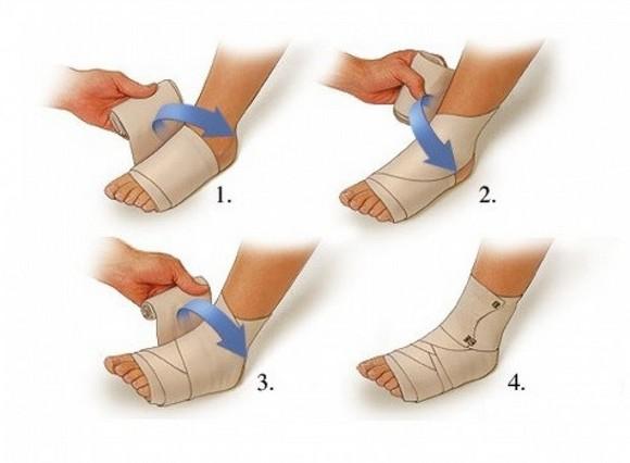 Накладывание повязки на больной сустав