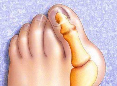 Косточка большого пальца ноги