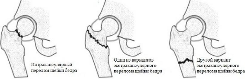 Перелом шейки бедра