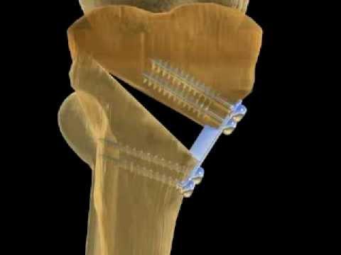 Показания и этапы проведения корригирующей остеотомии