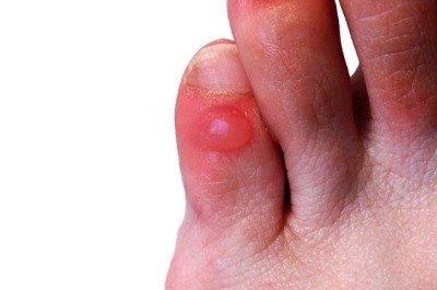 Что делать при воспалении мозоли на ноге?
