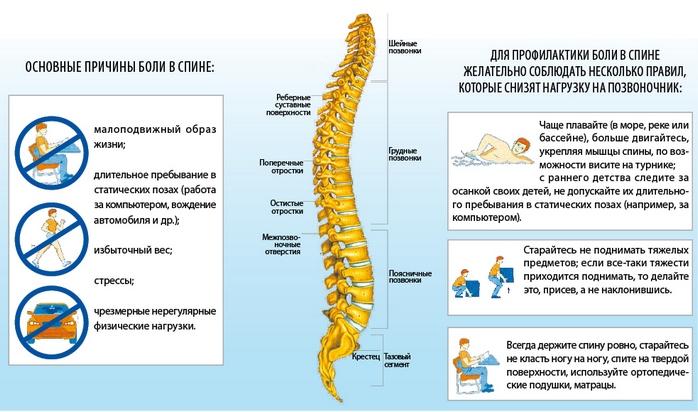 Профилактика боли в спине