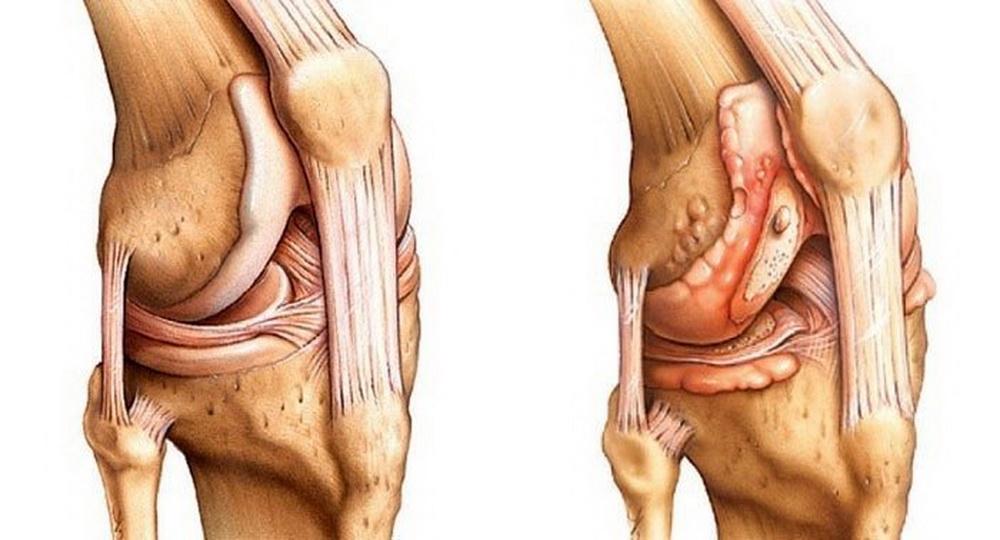 Симптомы и лечение артрита коленного сустава