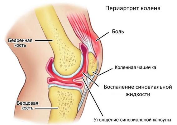 Периартрит колена