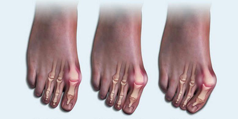 Степени развития артрит стопы