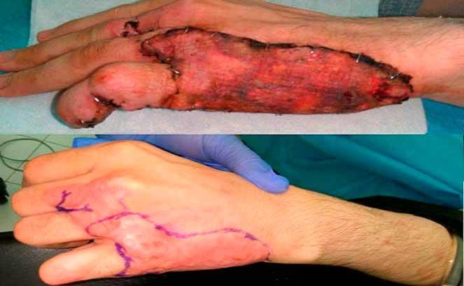 До и после пересадки кожи после ожога