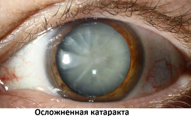 осложненная катаракта обоих глаз