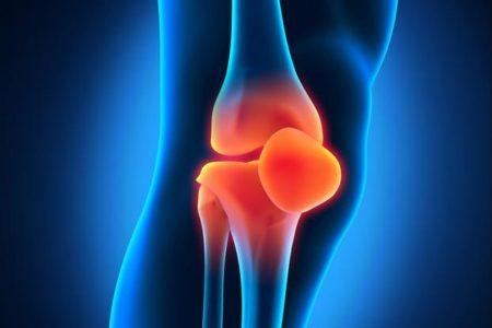 Тест 5. Здоровье коленей