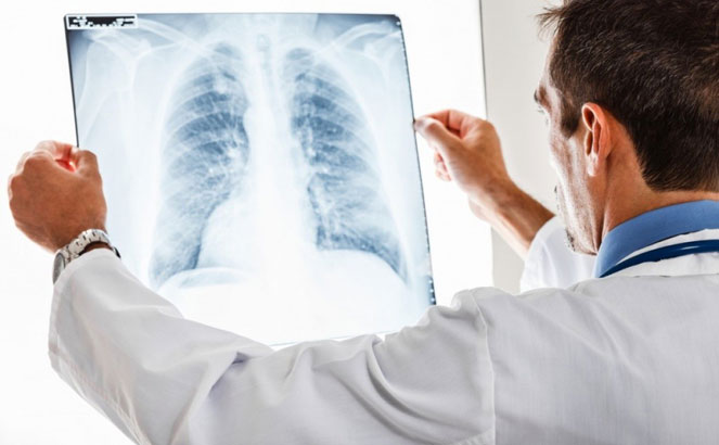 Рентгенограмма легких