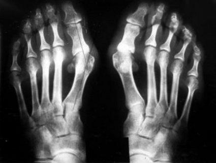 Рентгеновский снимок стопы человека