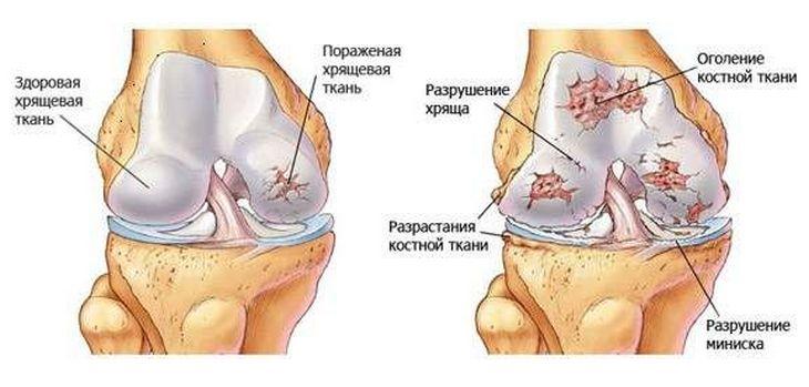 Хрящевая ткань сустава