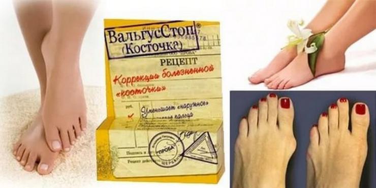 Мазь &quot,Вальгусстоп&quot, от шишки на большом пальце ноги