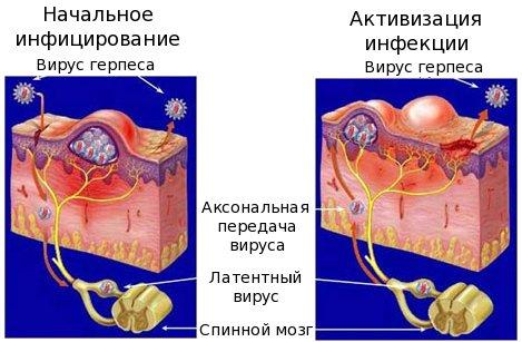 herpes-virus2