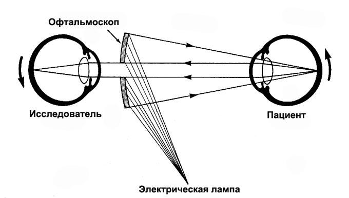 схема офтальмоскопического исследования