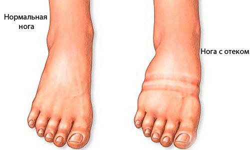 Отеки ног при сахарном диабете у пожилых людей