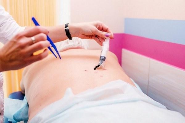 Гирудотерапия межпозвоночной грыжи