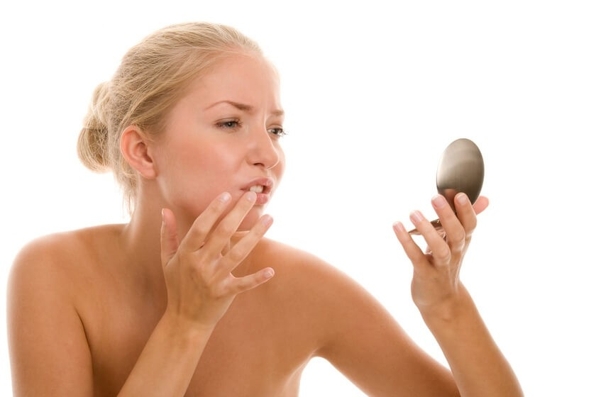 Лечим трещины в уголках губ