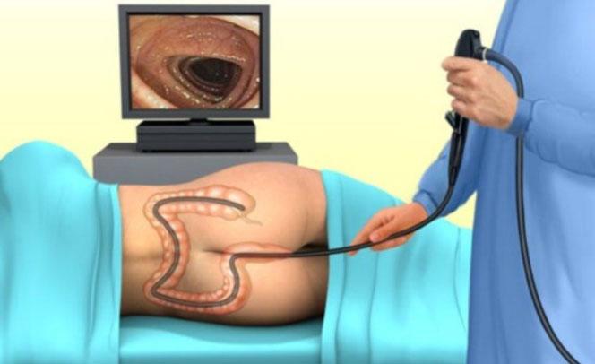 Проведение колоноскопии кишечника
