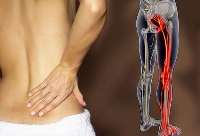 Боли в спине, отдающие в ногу