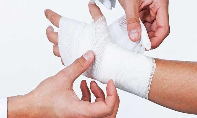 Кисть руки после перелома