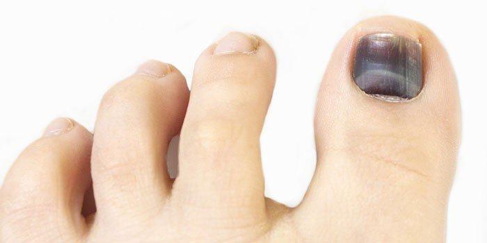 На ногте большого пальца ноги образовалось темное пятно?