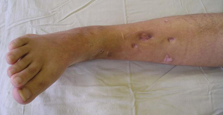 Высокая температура после перелома ноги