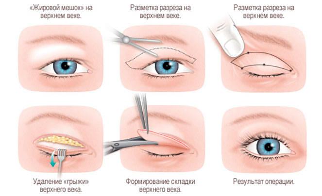 Как проходит операция по блефаропластике