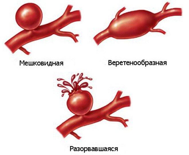 Симптомы и лечение окклюзии артерий ног