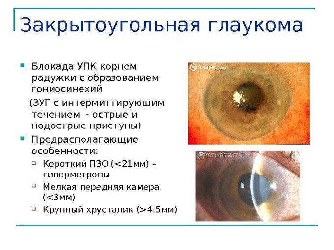 капли при закрытоугольной глаукоме