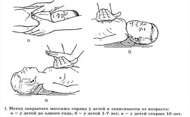 Техника проведения непрямого массажа сердца детям