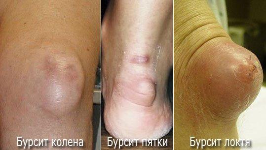 Причины, лечение и профилактика бурсита