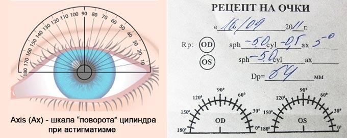 рецепт на очки при сложном астигматизме