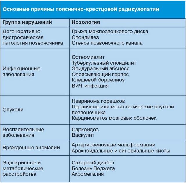 Основные причины радикулопатии