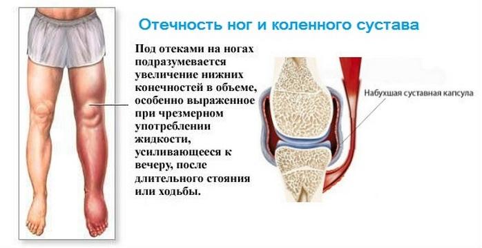 Отченость ног и коленного сустава