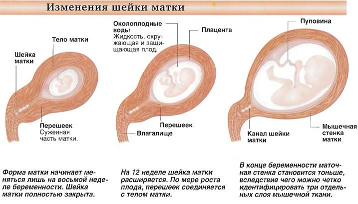 Изменения шейки матки при беременности