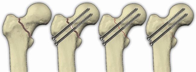 Антеторсия и антеверсия тазобедренных суставов у ребенка