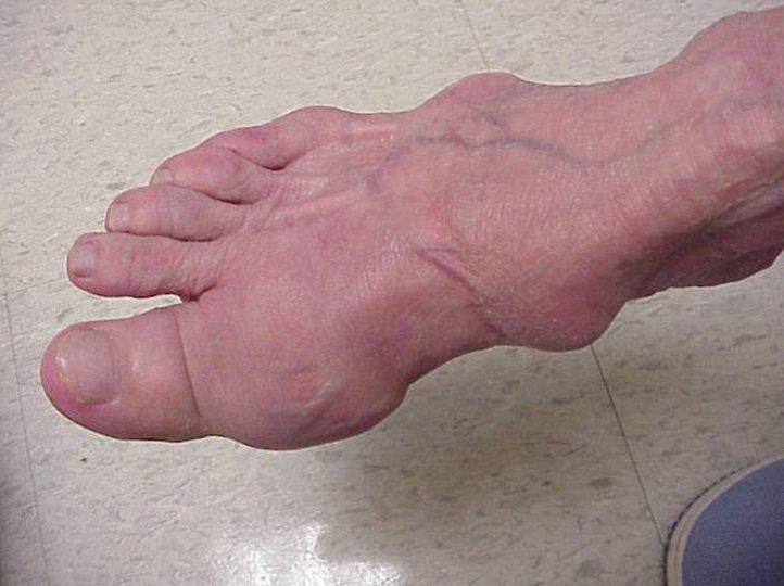 Возможные заболевания стопы человека