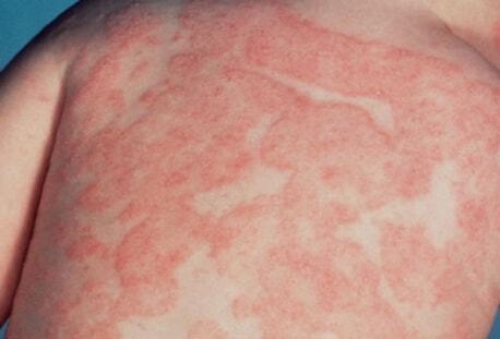 allergicheskij-dermatit-na-spine-u-rebenka
