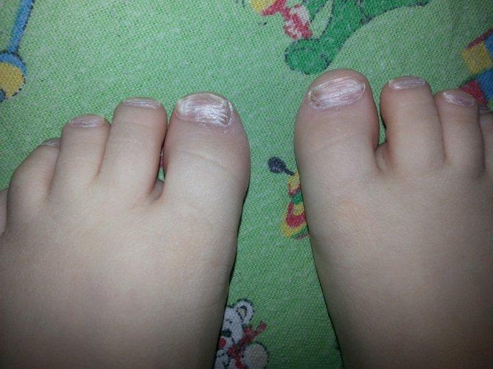 Лечение грибка ногтей у детей
