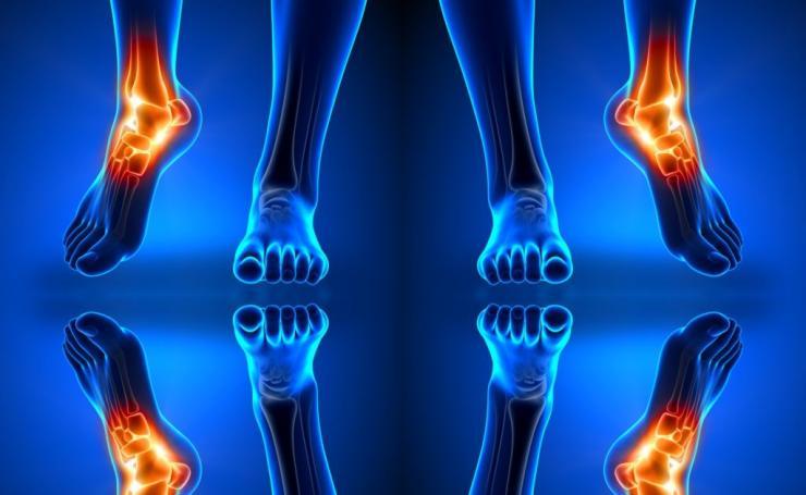 Что показывает и как проводится МРТ лодыжки?