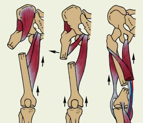 Чрезвертельный перелом бедренной кости со смещением