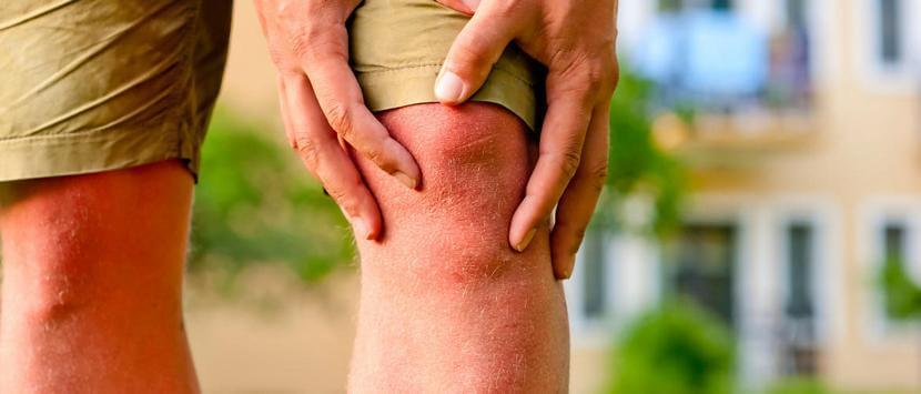 Лечение варикоза под коленом