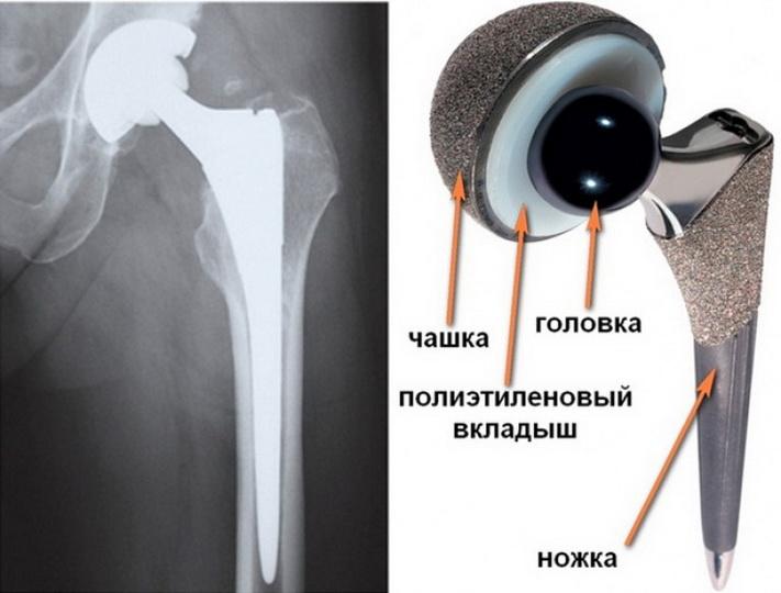 Возможные осложнения после замены тазобедренного сустава у пожилых