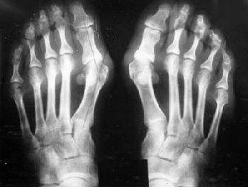Лечение артроза таранно-ладьевидного сустава