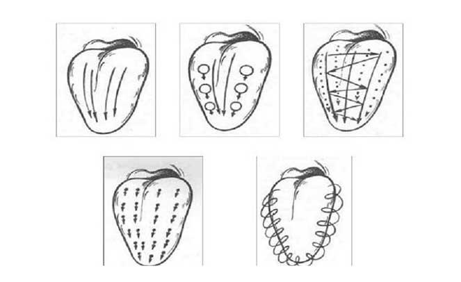 Логопедический массаж языка