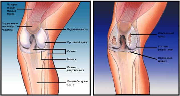 Костные разрастания на коленном суставе