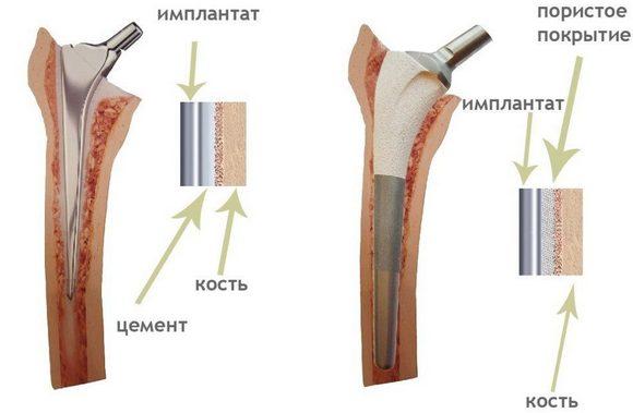 Цементное эндопротезирование