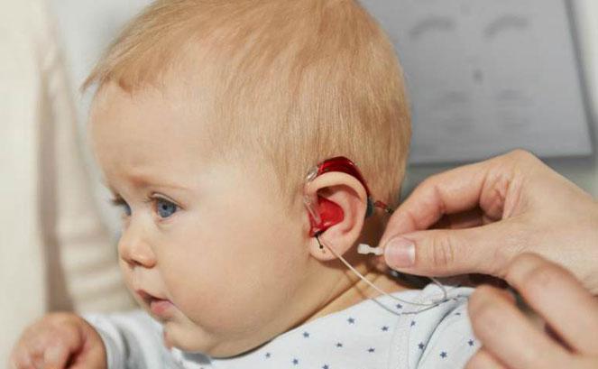 Малыш с имплантом