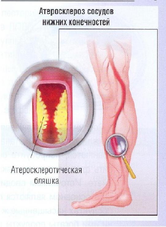 Лечение стеноза сосудов нижних конечностей