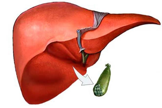 Изменения в организме после удаления желчного пузыря